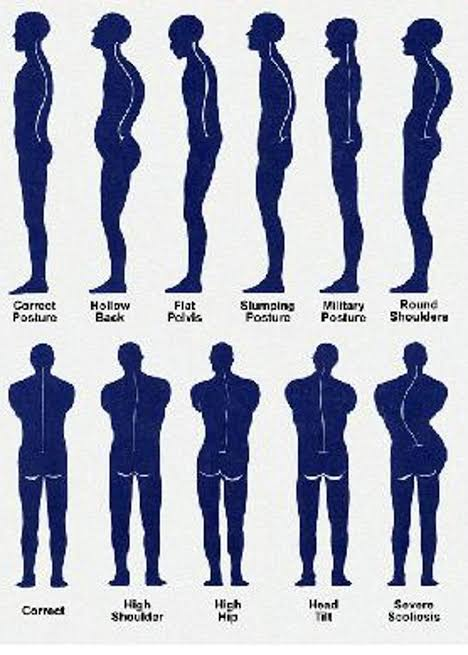 Posture assessment and correction