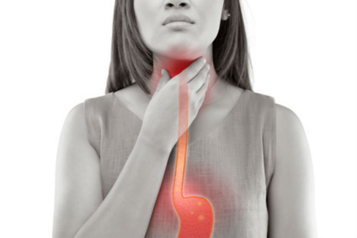 Suffering-From-Acid-Reflux