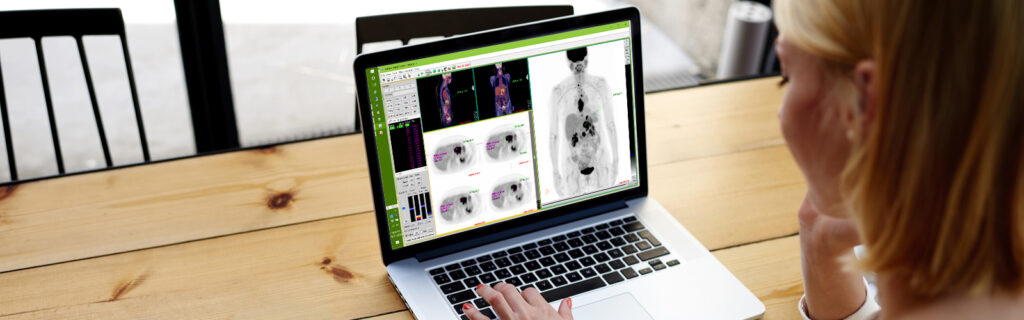 PET/CT PET/MR SPECT/CT Medical Image Fusion Software