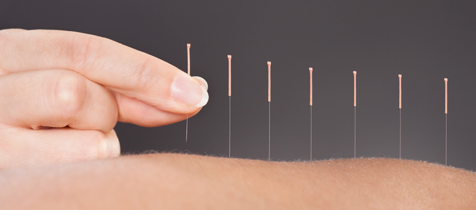 Acupuncture at the Norfolk Clinic, Norwich