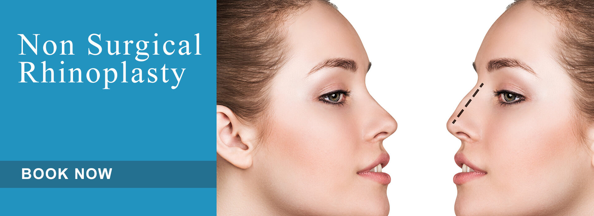 Non Surgical Rhinoplasty Aesthetic Treatment