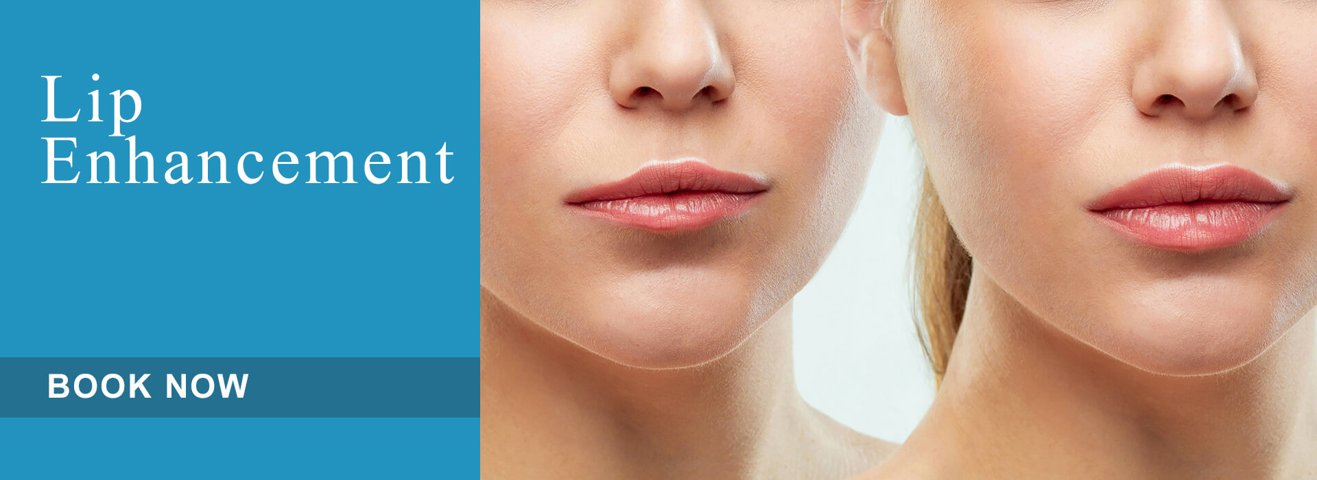 Lip Enhancement Aesthetic Treatment