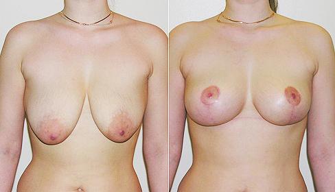 Aumento mamas