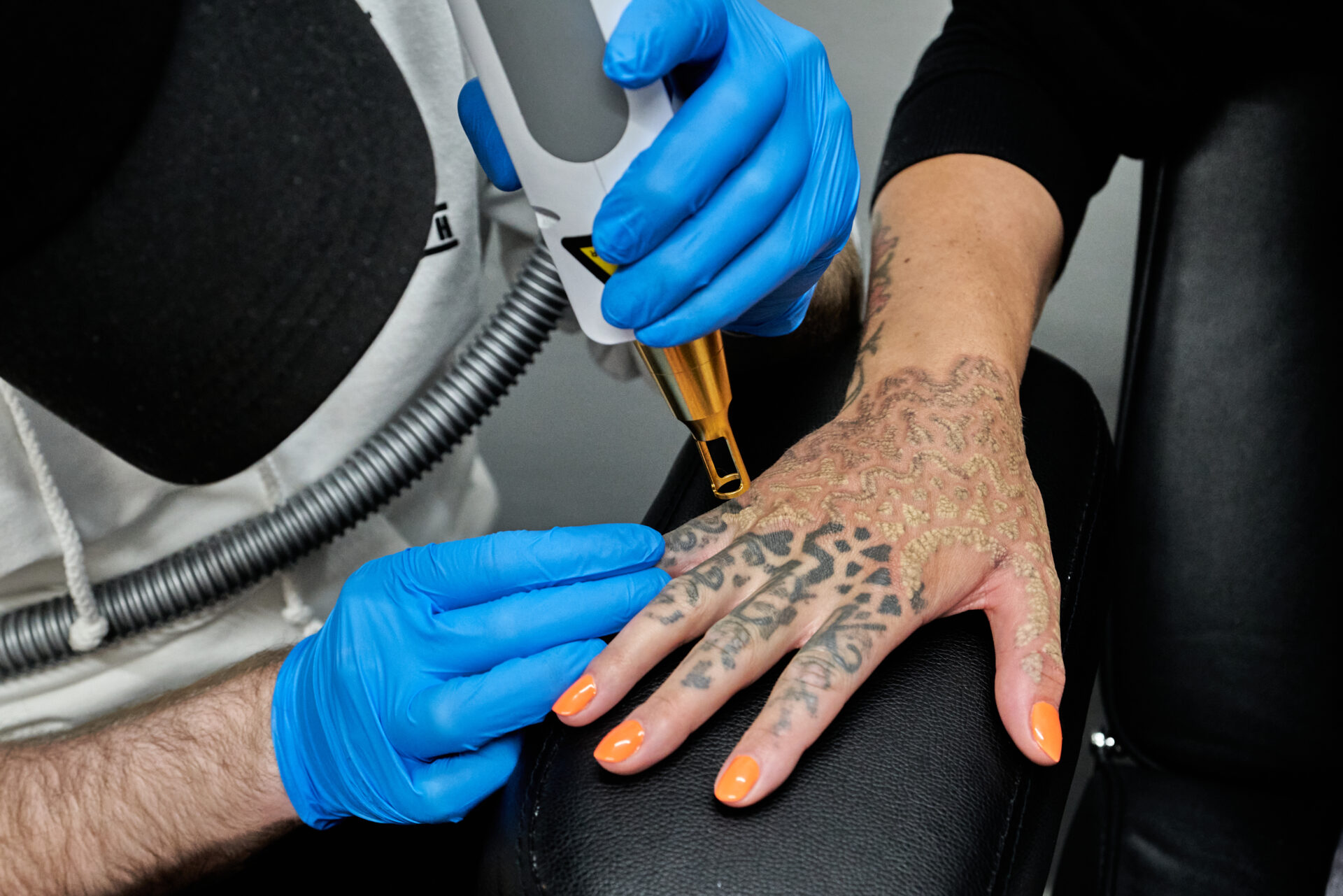 Tattoo Erase Barry JPEGS 47