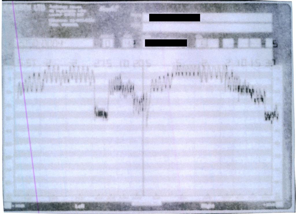 Bekesy Audiogram