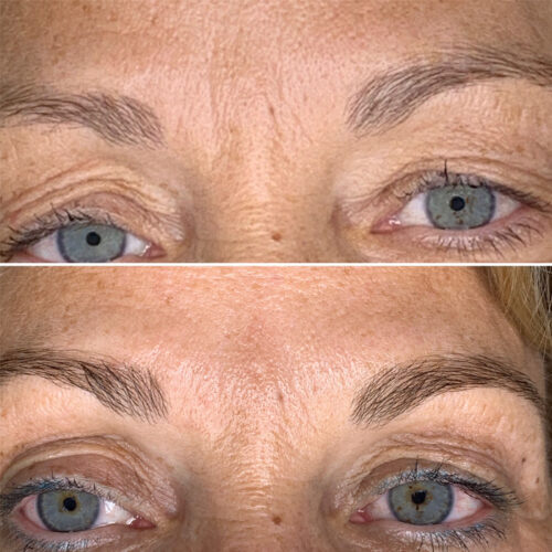 Augen_Stirnbereich