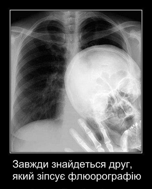 Демотиватор Флюорографія. Завжди знайдеться друг, який зіпсує флюорографію