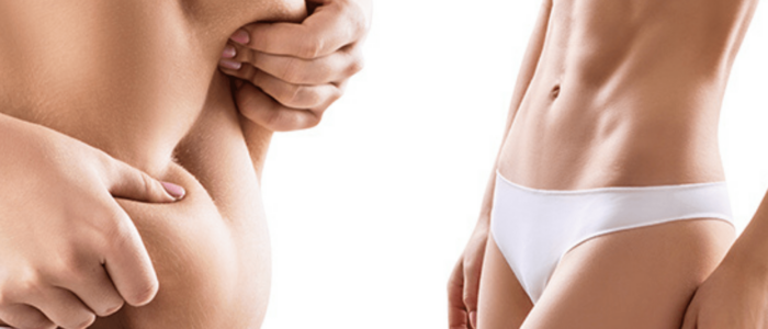During the birth process the straight abdominal muscles can diverge