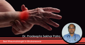 Best Rheumatology Doctor for Arthritis, Which Is Not a Single Disease