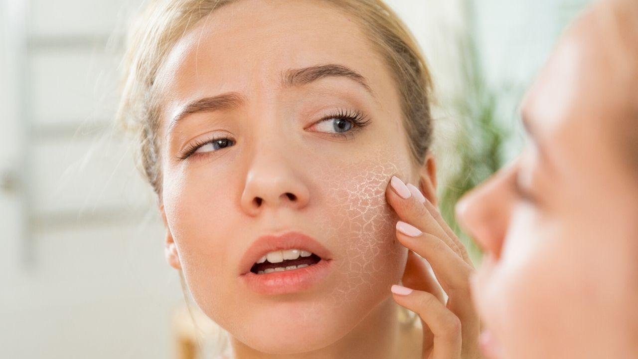 Homemade Face pack For Dry Skin in Winter
