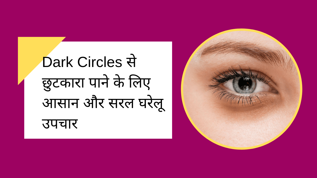 Read more about the article Dark Circles से छुटकारा पाने के लिए आसान और सरल घरेलू उपचार