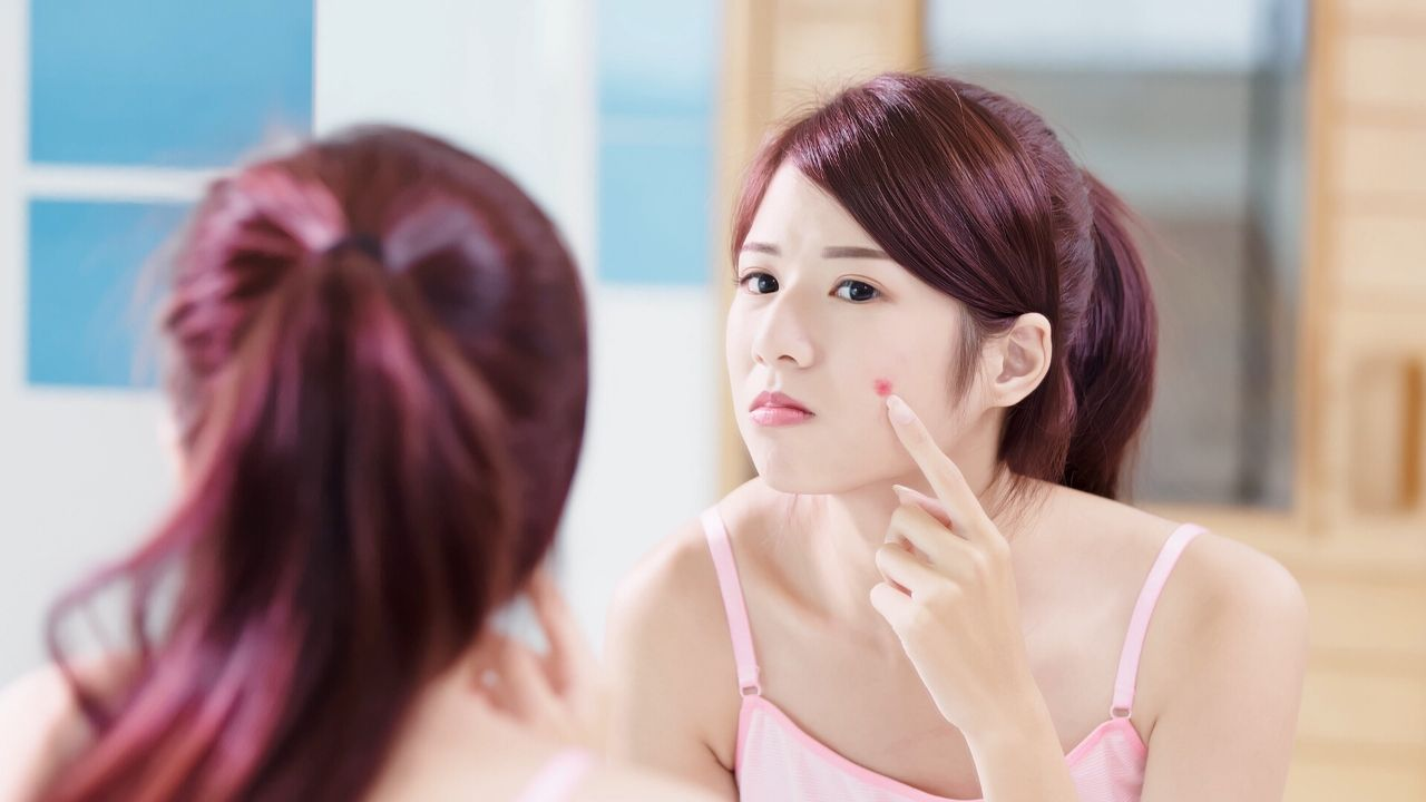 How to Get Rid of Red Acne Scars and Pimples?