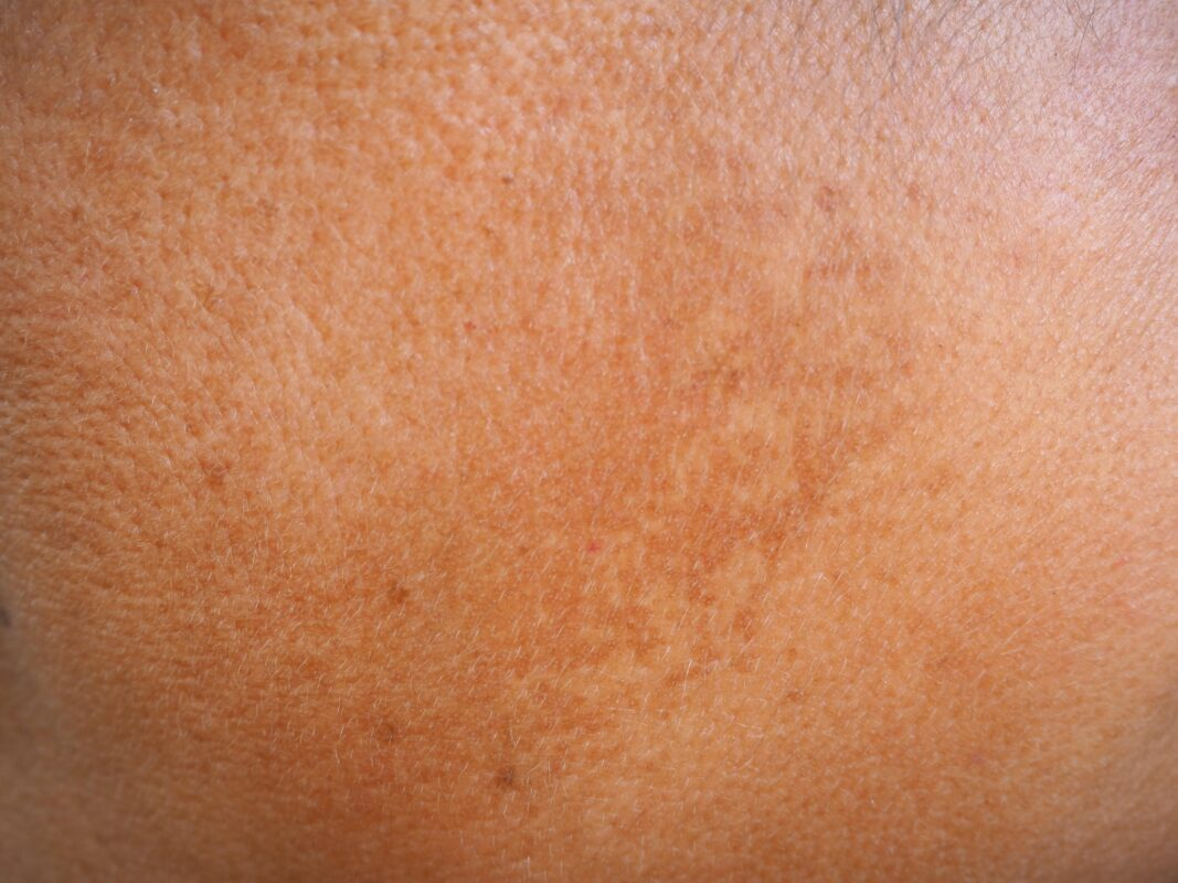 skin with dark spots from sun exposure