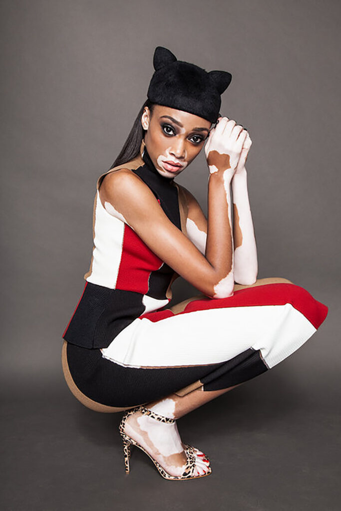Winnie Harlow in red black and white dress
