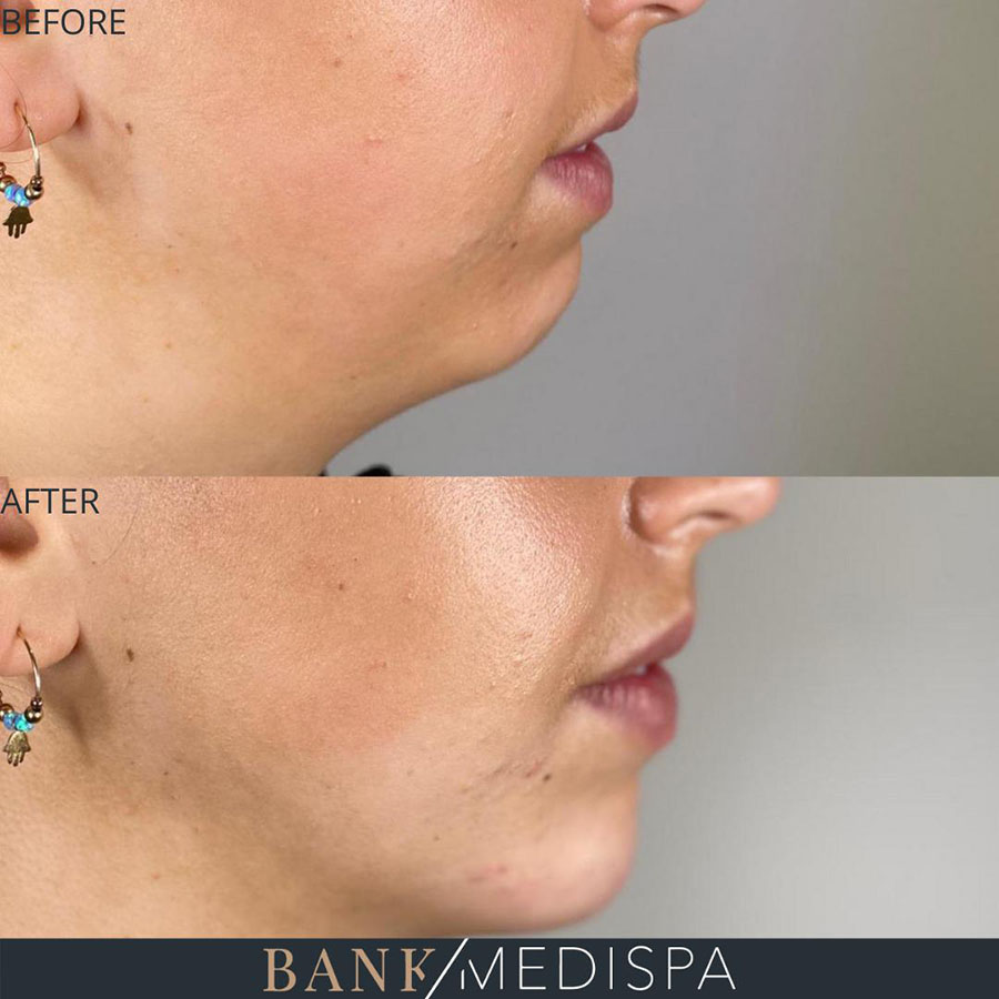 dermal fillers for chin and jawline