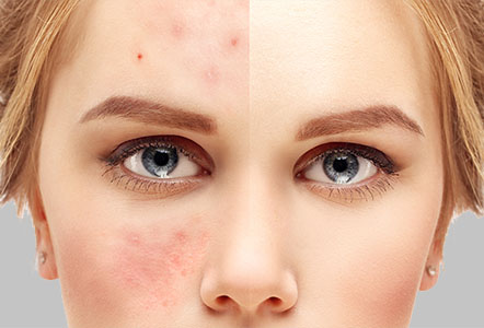 micro needling treatment for acne scars