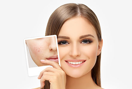 acne scar treated with laser