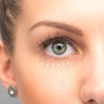 for under eye wrinkles