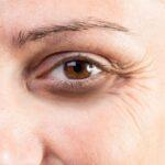 for eye wrinkles