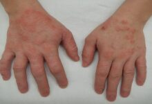 9 signs of a severe Eczema