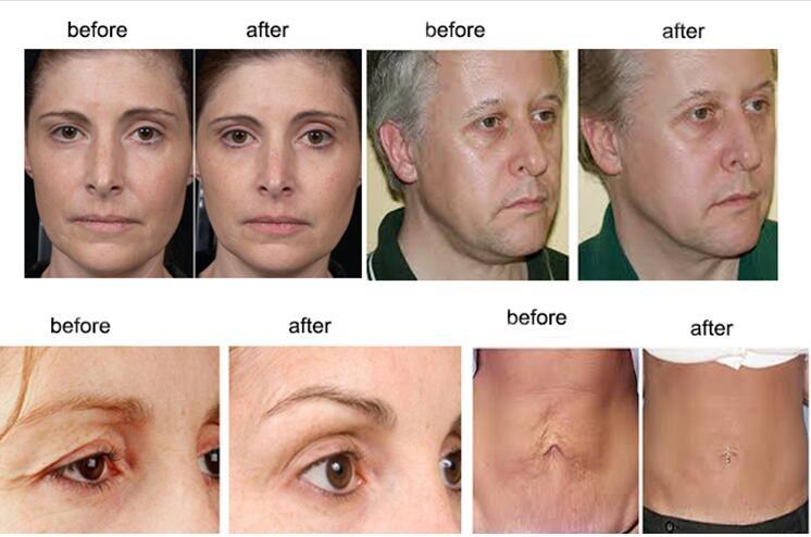 RET facial skin tightenning