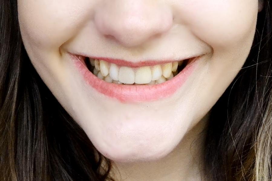 smile lab teeth whitening after