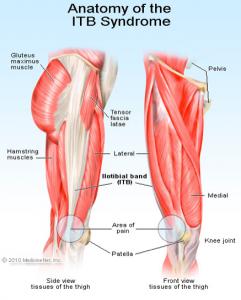 AnatomyITBSyndrome
