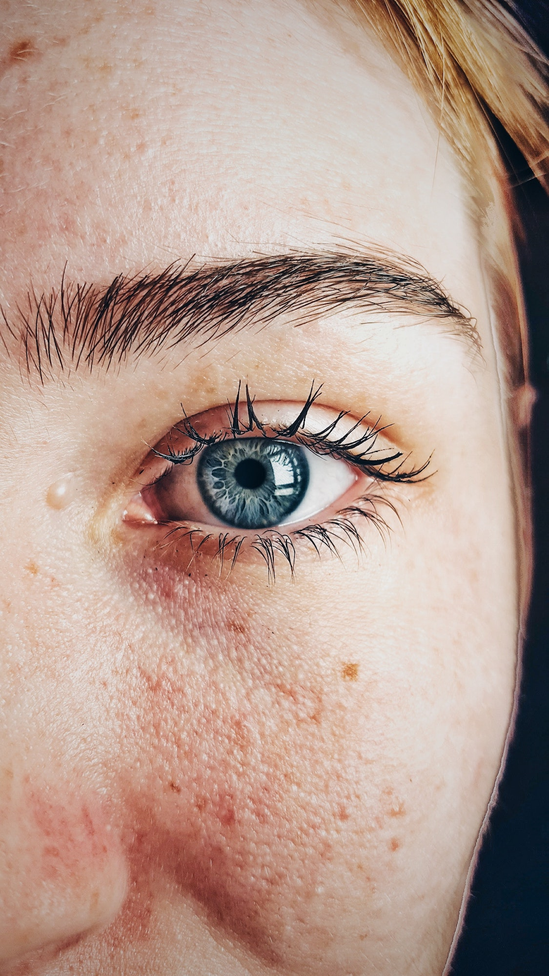 Acne Breakouts - 5 Ways Hormones Affect Your Skin | Beauty Tips | Elle Blonde Luxury Lifestyle Destination Blog