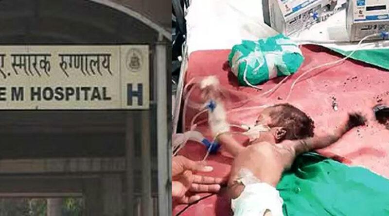मुंबई: केईएम के ICU में आग, मासूम प्रिंस का हाथ और कान जला