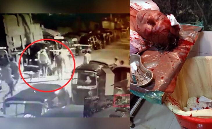 मुंबई: कांदिवली में अंडा व्यवसाई की बुरी तरह पिटाई, 6 लोगों के खिलाफ केस दर्ज