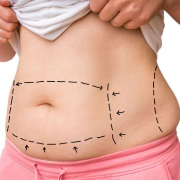 هل عمليات شفط الدهون لإنقاص الوزن أم للتجميل ؟