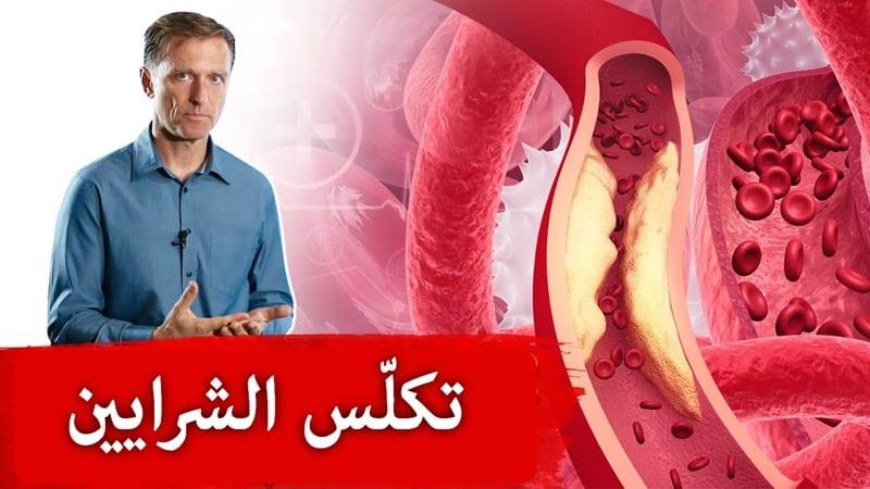 Arterial calcification