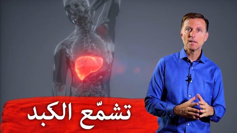 تشمّع الكبد