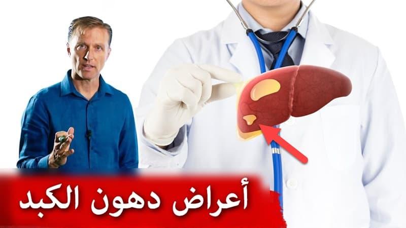 أعراض تشحم الكبد