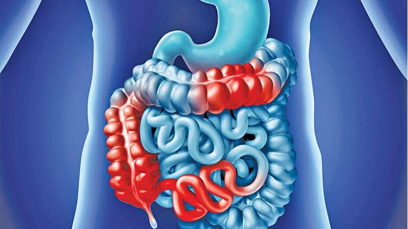 التهاب الأمعاء التقرحي