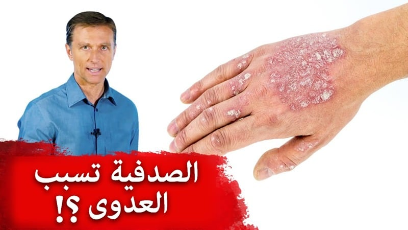 Is Psoriasis Contagious