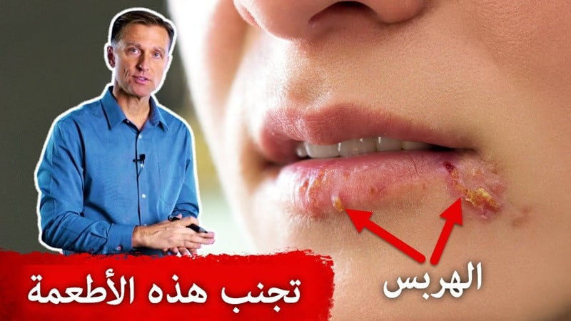 avoid-these-foods-if-you-have-herpes