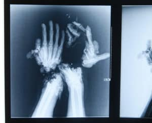 Mandatory Credit: Photo by HAP/Quirky China News/Rex/REX USA (1886510f) X-Ray of Wang Jin's mutilated hands Surgeons create new 'pincer' hands after worker is mutilated in accident, Changsha, Hunan, China - 24 Dec 2013 A Chinese hospital has made a pair of