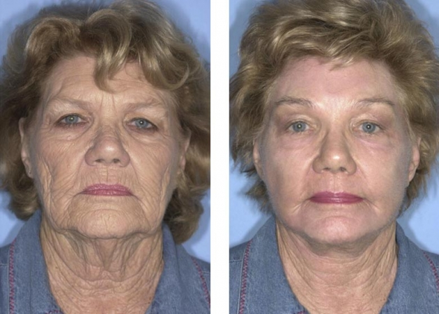 Photo of Natural Ways To Get Rid of Neck Wrinkles [4]
