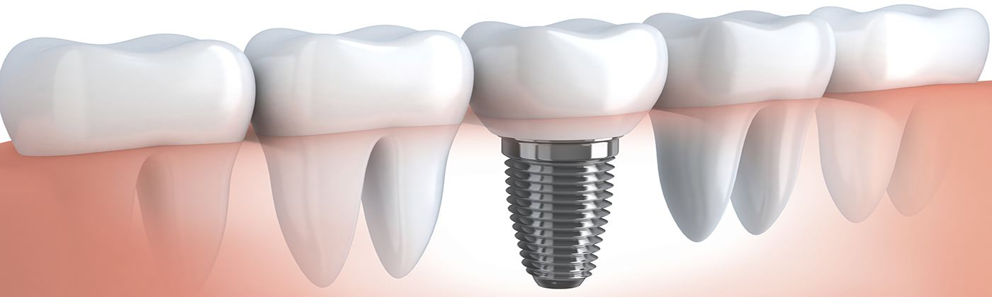 dental implants in goa