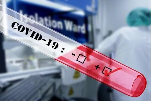 Preminulo još 17 osoba od posledica zaraze koronavirusom