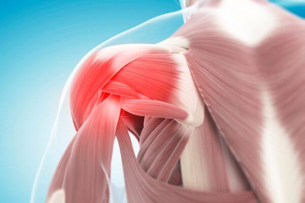 Povrede rotatorne manžetne ramena