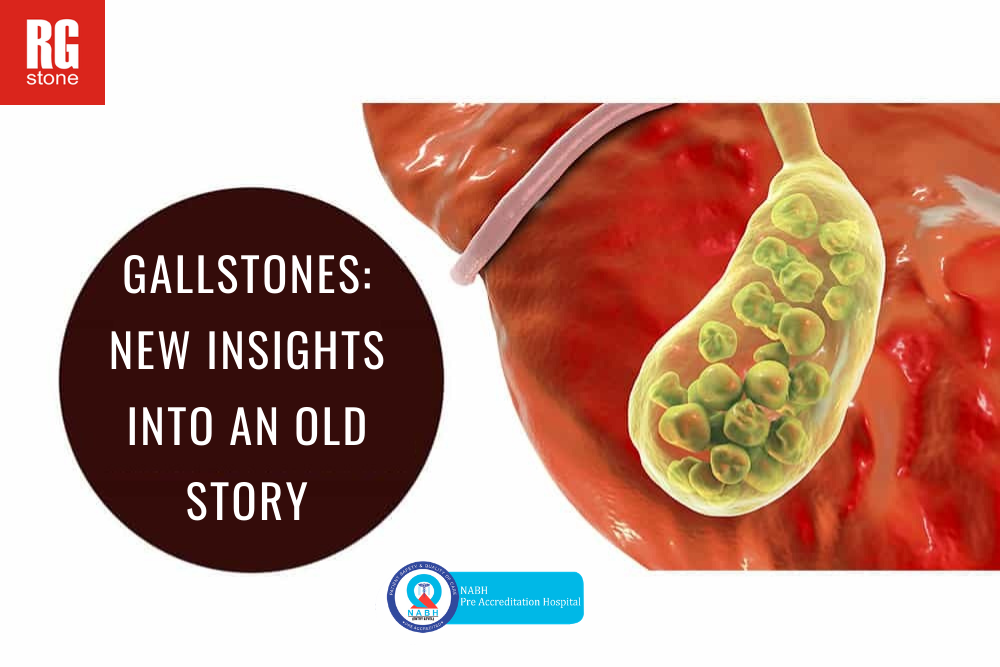 gallstone.png?time=1600848757