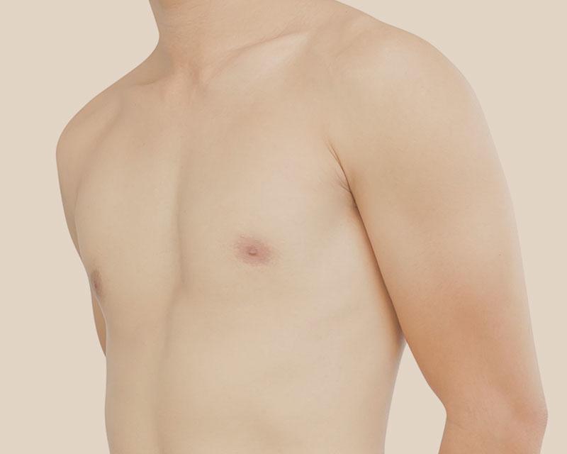 ginecomastia masculina cirugía estética hombres en madrid