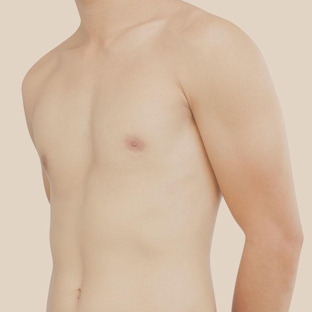 ginecomastia masculina cirugía estético hombres pecho clínica trevi