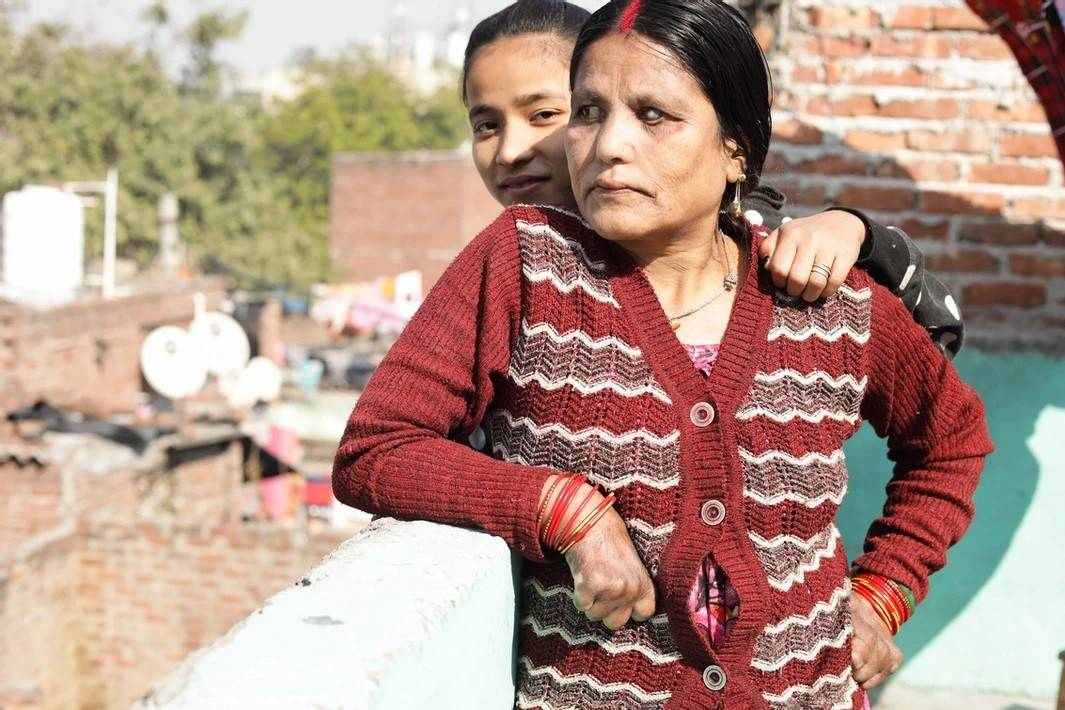other side of illness leprosy in india