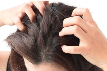 4 Natural Home Remedies to Get Rid of Dandruff at Home