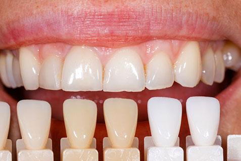 Denture repair lab near me