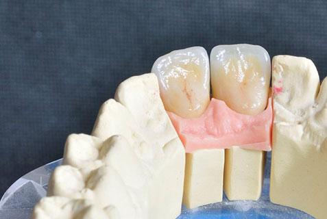 dentures broken London