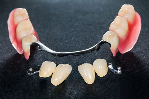 Partial denture repair